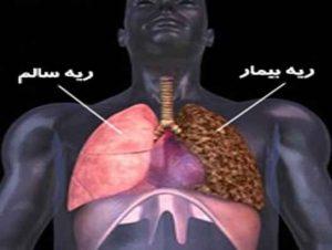 ریه سیاه