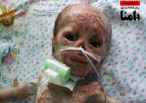 سوختن نوزاد ۳ روزه در دستگاه فتوتراپی بیمارستان