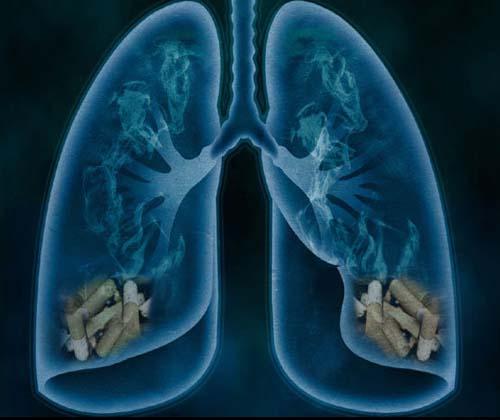 نقشه برداری از یک بیماری مرگبار ریه با تکنیک تصویر برداری سه بعدی
